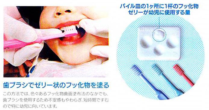歯ブラシでゼリー状のフッ化物を塗る